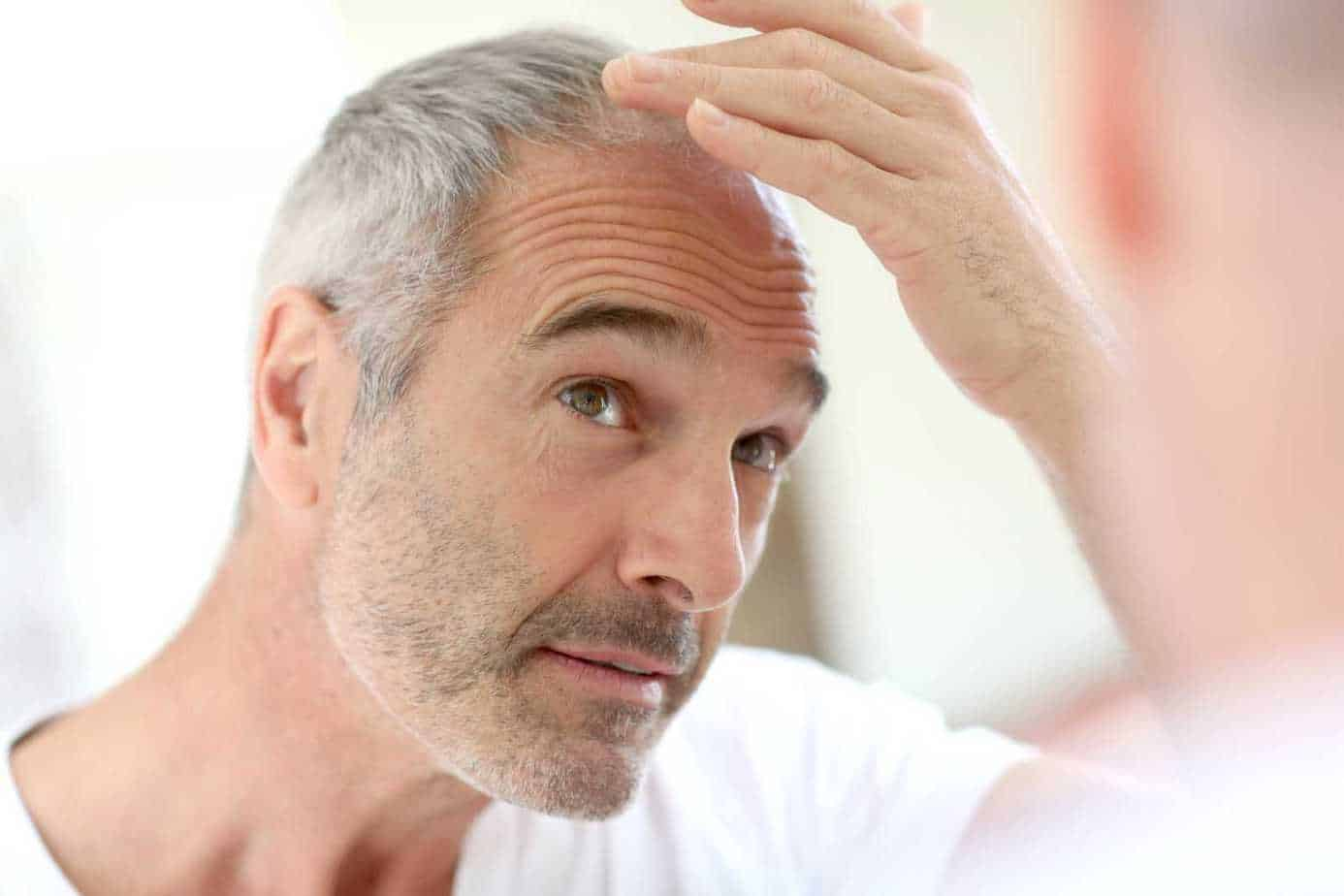 Hair Loss After Hair Transplants – Do You Need Another Treatment?