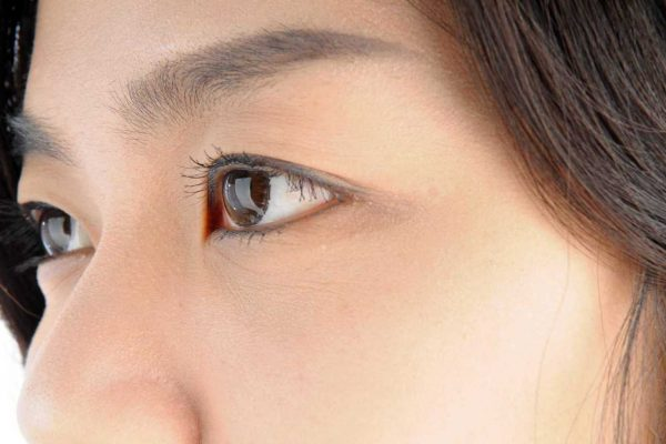 Thicker, fuller eyebrows through eyebrow transplants