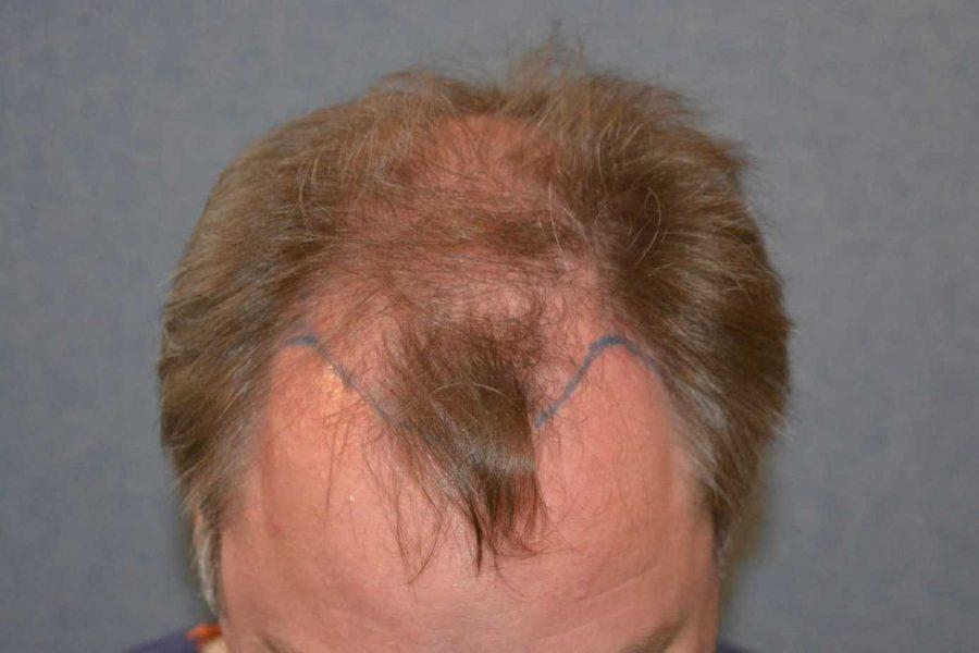 Derek's Hair Transplant