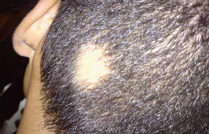 Bald-patches-treatment-advice-alopecia-areata