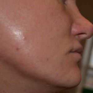 Beard-transplant-before-1