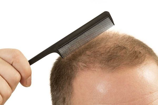 Common Scalp Problems and How to Treat Them