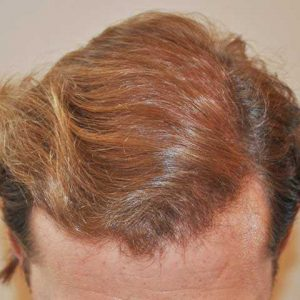 Hair-transplant-after-1