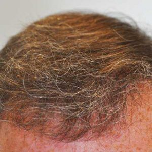 Hair-transplant-after-10
