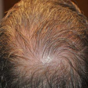 Hair-transplant-after-13