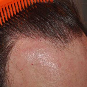 Hair-transplant-after-23