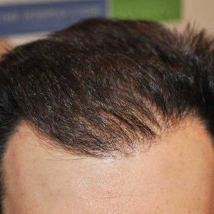 Hair-transplant-after-3