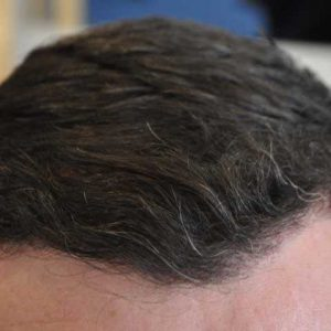 Hair-transplant-after-4
