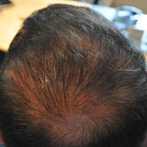 Hair-transplant-after-9