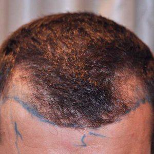 Hair-transplant-before-12