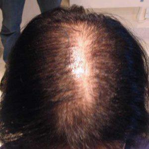 Hair-transplant-before-22