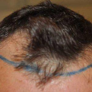 Hair-transplant-before-4