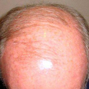 Hair-transplant-before-6
