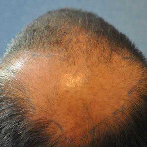Hair-transplant-before-9
