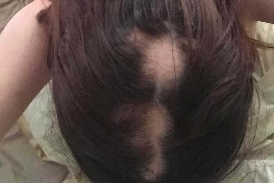 My Experience With Alopecia As A Balding Woman