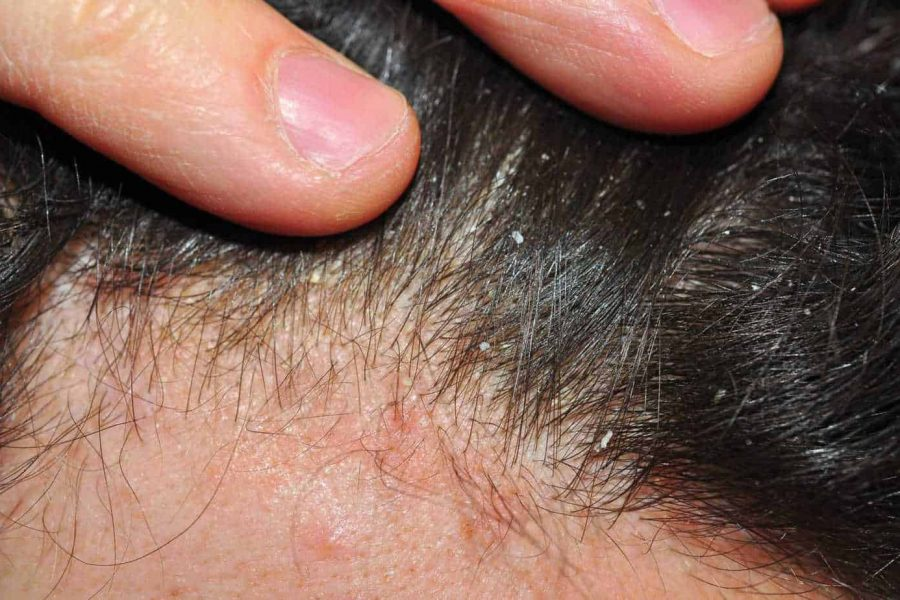 Scalp Psoriasis – Diagnosis And Treatments