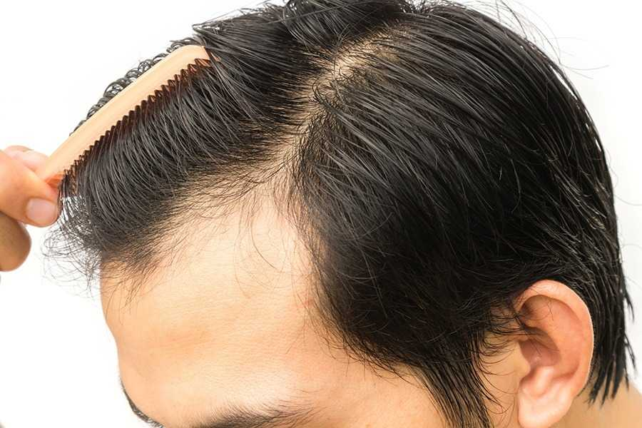 Recovering From Hair Transplant Surgery What To Expect